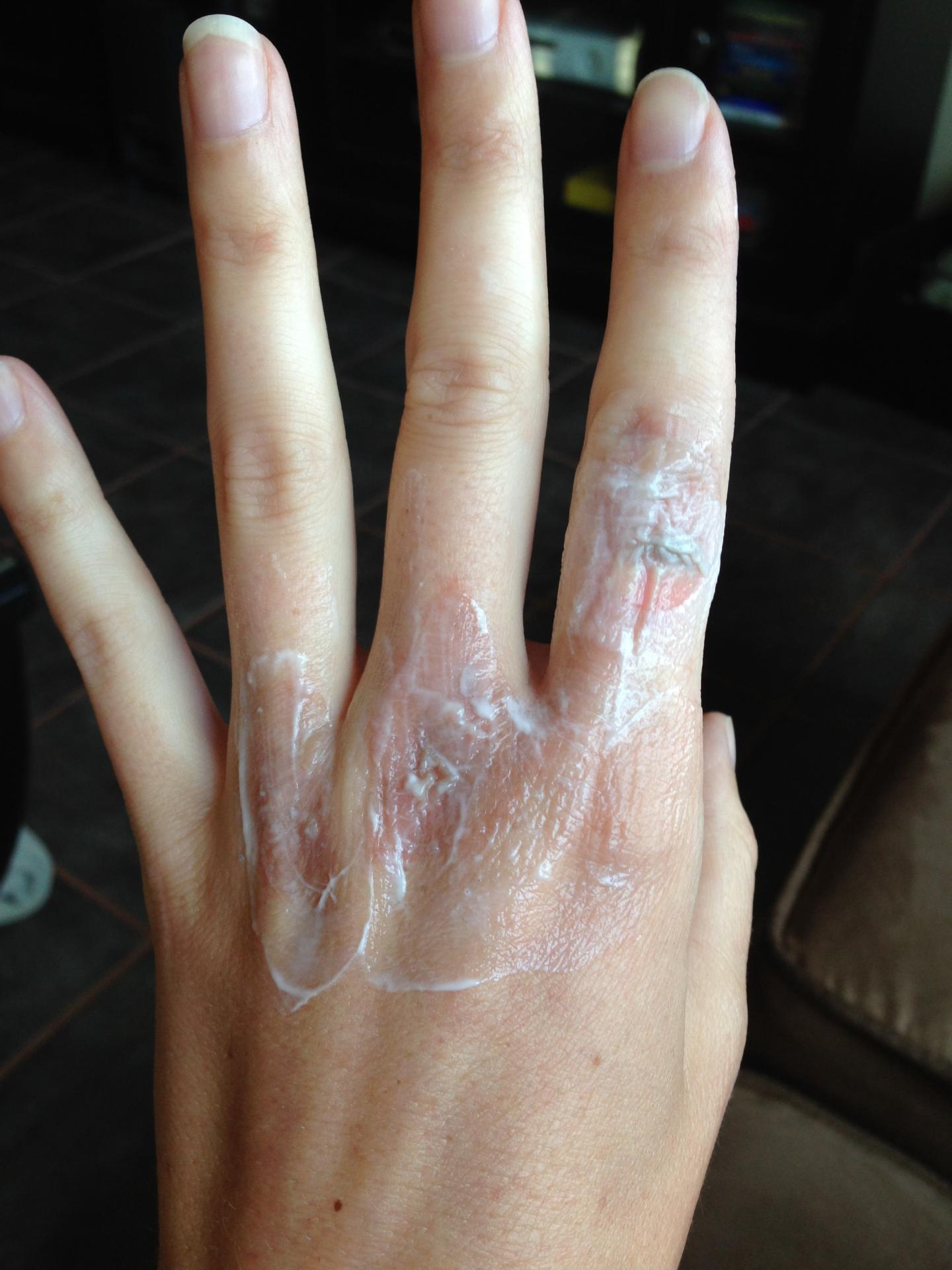 burned-hand-with-msm-cream.jpg